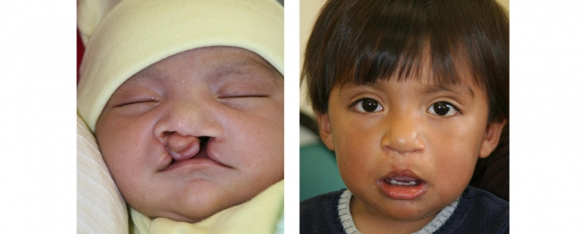 the role of clinicians when treating children with cleft palate • the majority of children with a cleft palate will require orthodontics orthodontic treatment may be required in the primary, mixed, and permanent dentition.